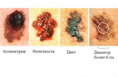 Вирус папилломы онкогенный