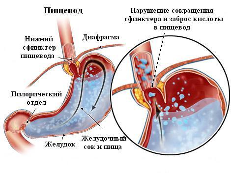 Гастроскопия в диагностике рефлюкс-эзофагита Справка о свободном посещении вуза Юрьевская улица